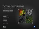 Capa OCT-Angiographie Pratique